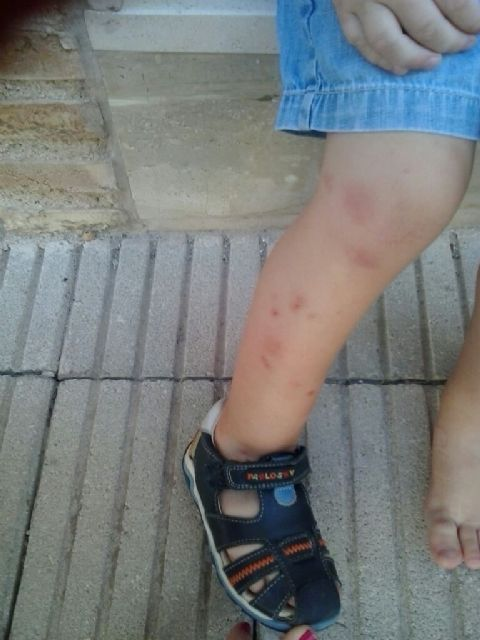 El PSOE exige al Ayuntamiento de Murcia que tome las medidas necesarias para acabar con la plaga de mosquitos - 2, Foto 2