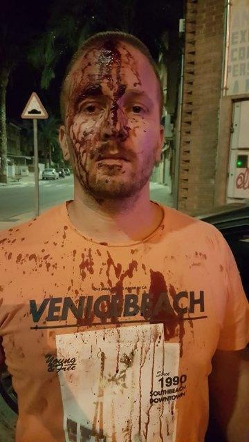 Agreden a un vecino de Totana y le ocasionan varias heridas en la cabeza al grabar un bar que supuestamente infring�a la normativa, Foto 2