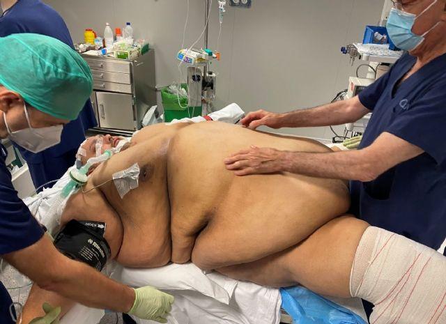 Emilio Jesús Jiménez, una vida con 308 kilos - 1, Foto 1