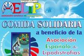 El 1 de diciembre tendrá lugar la comida solidaria a beneficio de la Asociación Española de Lipodistrofias, AELIP