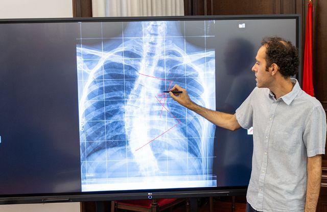 La UCAM lidera una investigación para crear un dispositivo que mejora la calidad de las radiografías - 1, Foto 1
