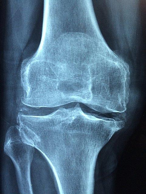 Mesa redonda sobre ´nuevas dianas terapéuticas en osteoporosis y vitamina d´ - 1, Foto 1