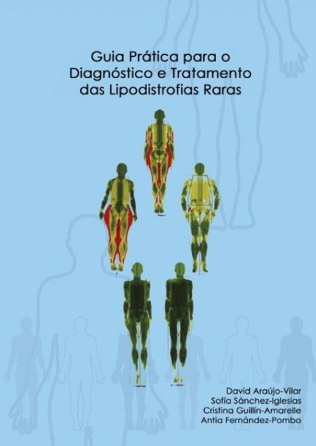 La actualización de la guía práctica para el diagnostico y tratamiento de las Lipodistrofias ya está disponible en portugués