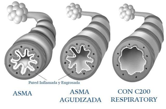 Una empresa española presenta una innovación para el tratamiento de ahogo e inflamación de los pulmones - 1, Foto 1